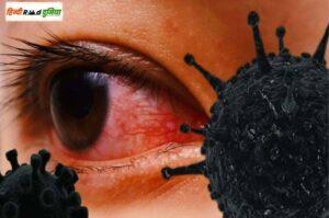 ब्लैक फंगस क्या है